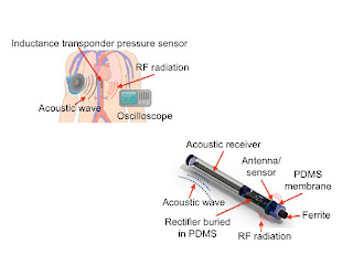 New type of miniature medical sensor powered by acoustic waves