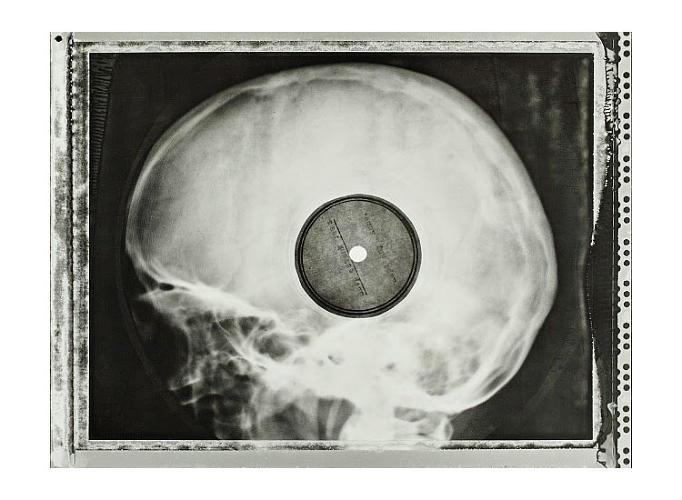 El cómo la música occidental prohibidas en la Unión Soviética eran impresos en reutilizadas placas de Rayos X