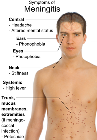 Pengertian Penyakit Meningitis, Gejala, Penyebab dan Pencegahan