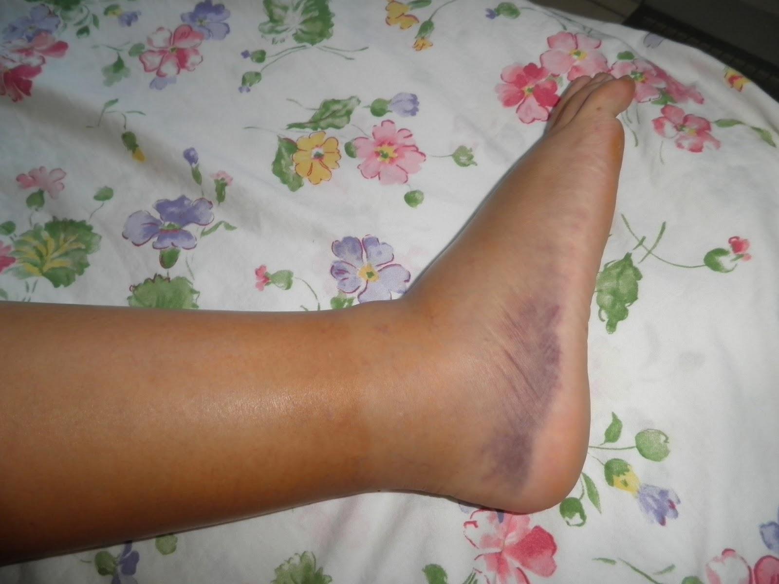 oedème du pied gauche