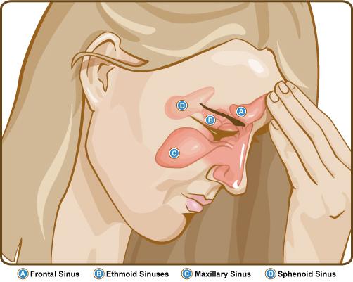 26. Paranasal Sinus Diseases | Pocket Dentistry