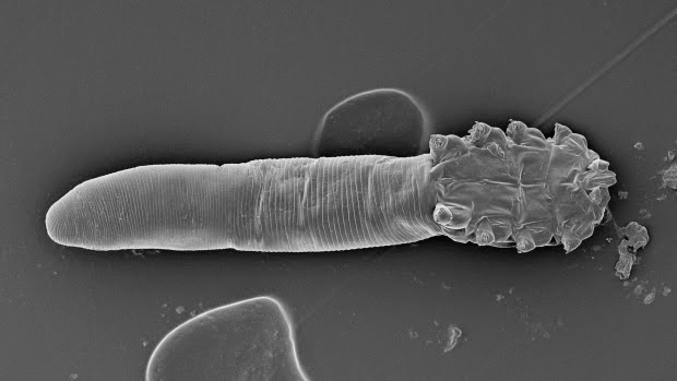 Foto Tungau Wajah (Face Mite) ini diambil dengan menggunakan mikroskop elektron