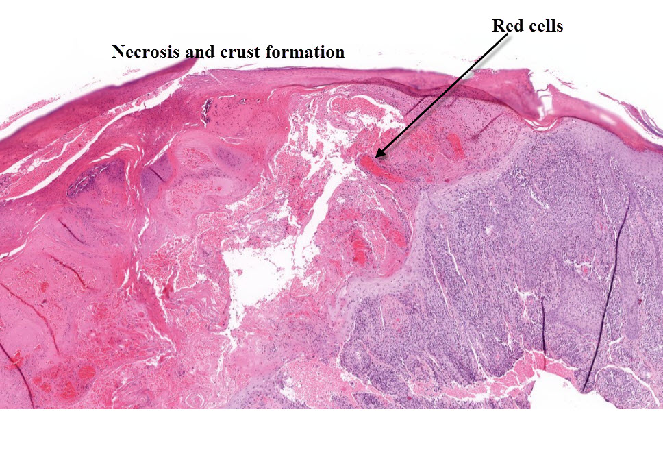 The histopathologic picture of psoriasis depends on stage and localisation of the lesion 1