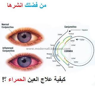 احمرار العين نتيجة الجلوس امام
