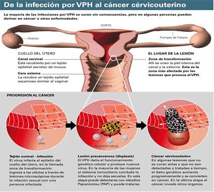 Cancer cervicouterino provocado por VPH