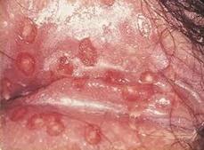 herpes-genitalis-female