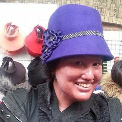 carly findlay in a purple hat