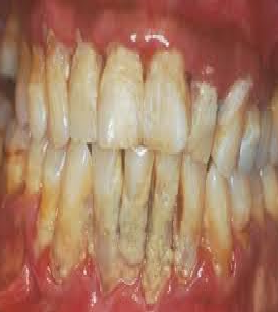 penyebab karang gigi hitam dan pencegahannya dan cara menghilangkannya lepas sendiri pada anak dan bau mulut pada perokok dan solusinya dan cra mengatasiya adalah apa akibat terjadinya munculnya balita nama bakteri gusi berdarah mencegahnya memberdsihkannya tidak dibersihkan faktor makanan tumbuh timbul plak terbentuknya utama