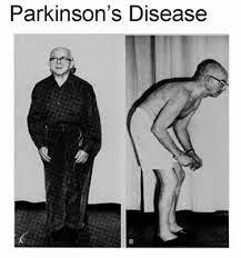 10 Gejala Penyakit Parkinson