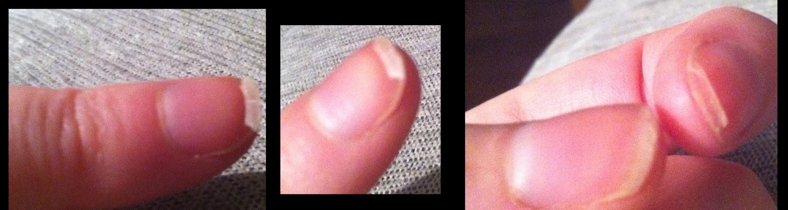 rimmel nail rescue 2 week treatment instructions