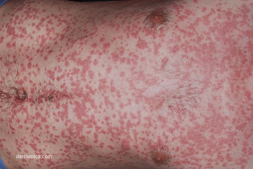 Guttate psoriasis explanation free 2