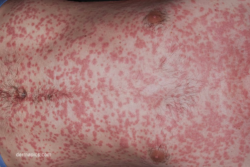 Does Psoriasis Spread