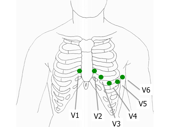 12 lead ecg placement diagram pictures to pin on pinterest
