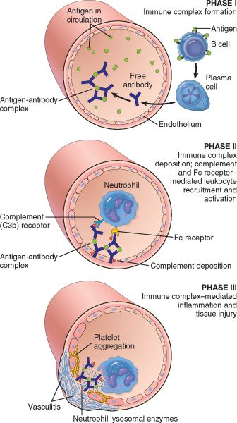anatomy psgn Acute poststreptococcal glomerulonephritis (psgn) is the archetype of acute gn  in recent decades, however, the incidence of psgn has.