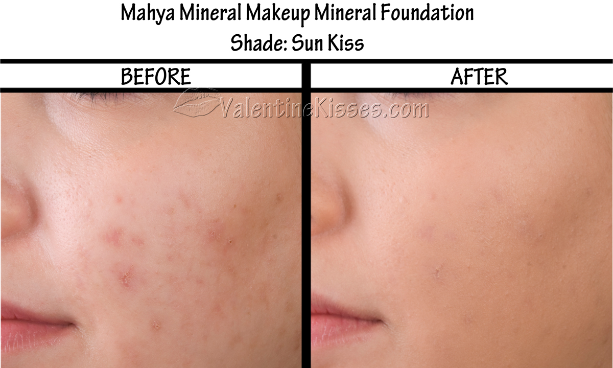images How to Cover Skin Flaws With Makeup