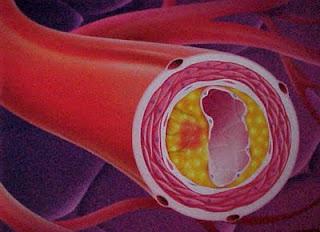 Detección familiar de exceso de colesterol en la sangre