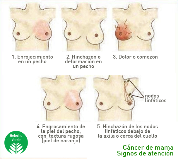 Bulto en el autoexamen de los senos