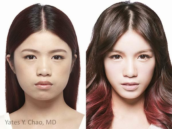 Radiesse feminization of facial contour by Yates Y. Chao, MD