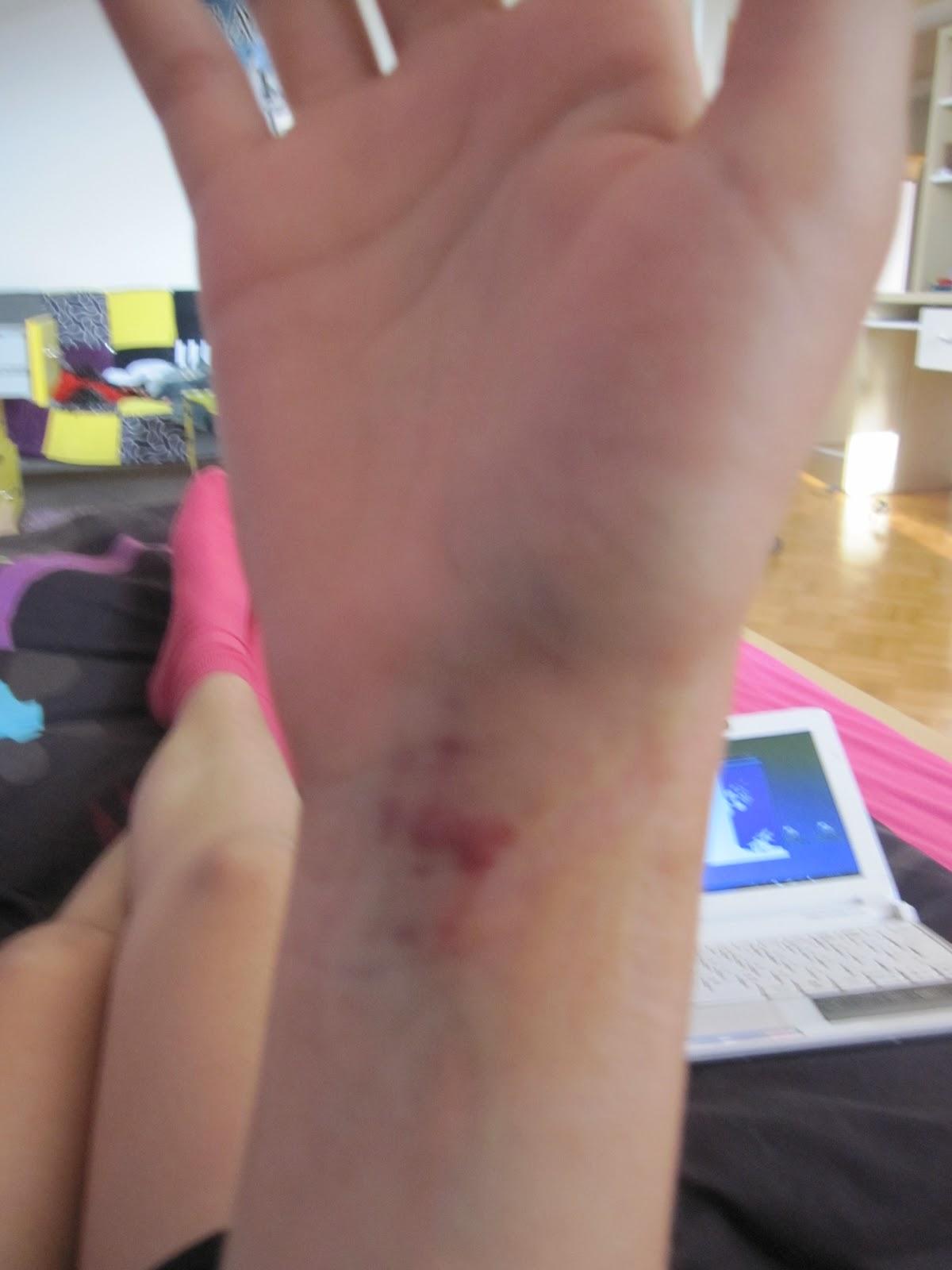 Scaphoid surgery-1.bp.blogspot.com