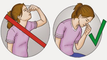 Penyebab Hidung Mimisan dan Cara Mengatasinya