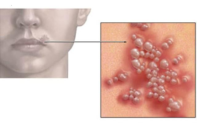 are canker sores contagious after antibiotics