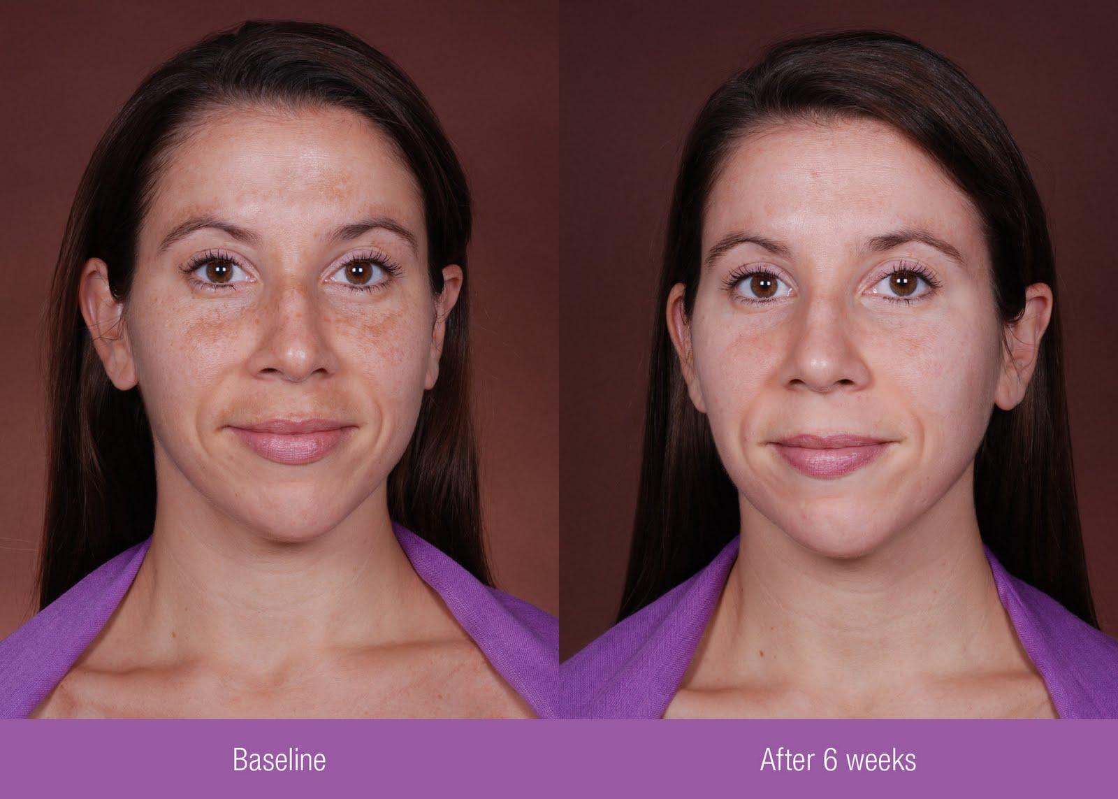 Tretinoin before moisturizer - CanadaDrugs: Canadian
