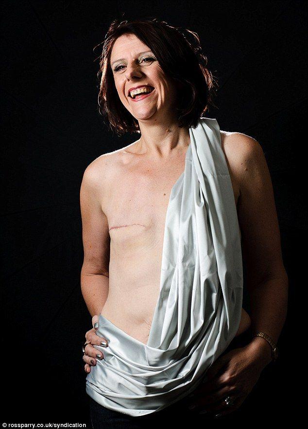 Dianggap Porno, Foto Wanita Tanpa Payudara Dihapus Facebook [ www.BlogApaAja.com ]