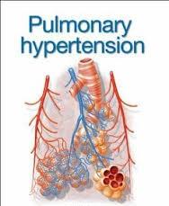 Global Pulmonary Arterial Hypertension Market to be ...