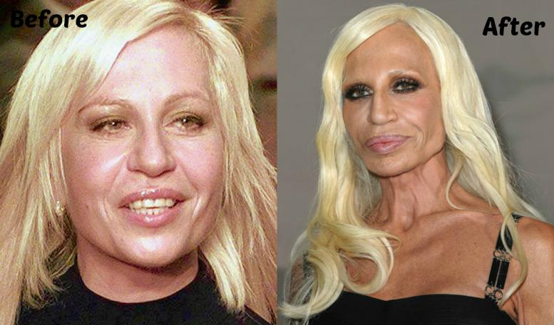 plastic surgery versace Donatella