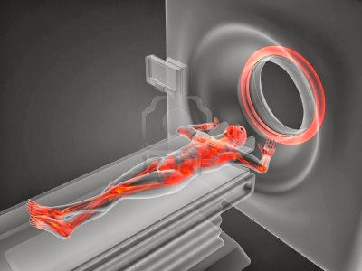 Tecnicos Radiologos: Efectos adversos de la Resonancia Magnética y ...