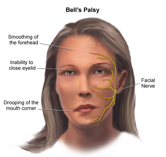 Face Exercises for Bell's Palsy http://earnosethroatdoc.blogspot.com/2012/01/facial-exercises-for-bells-palsy.html