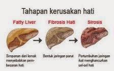 cara menjaga penyakit hati