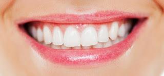 4 Bahan Alami untuk Gigi Putih Cemerlang