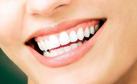menjaga mulut tetap sehat