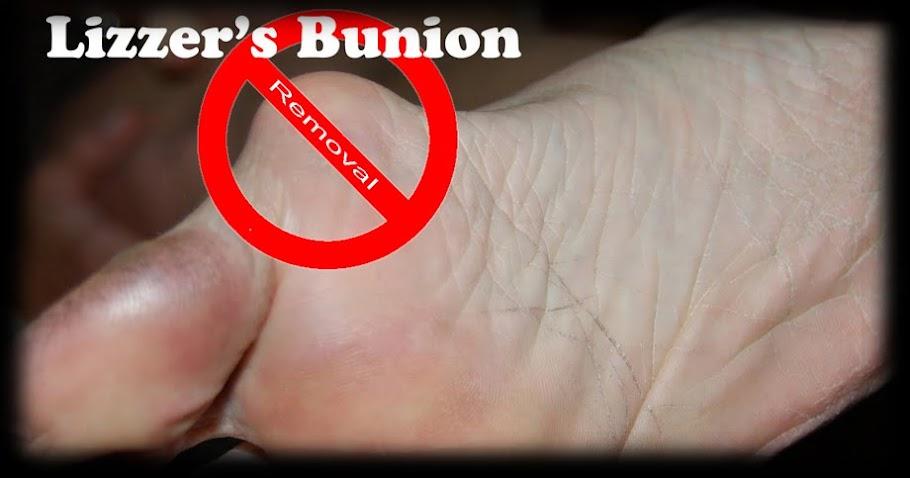 Lizzer's Bunion