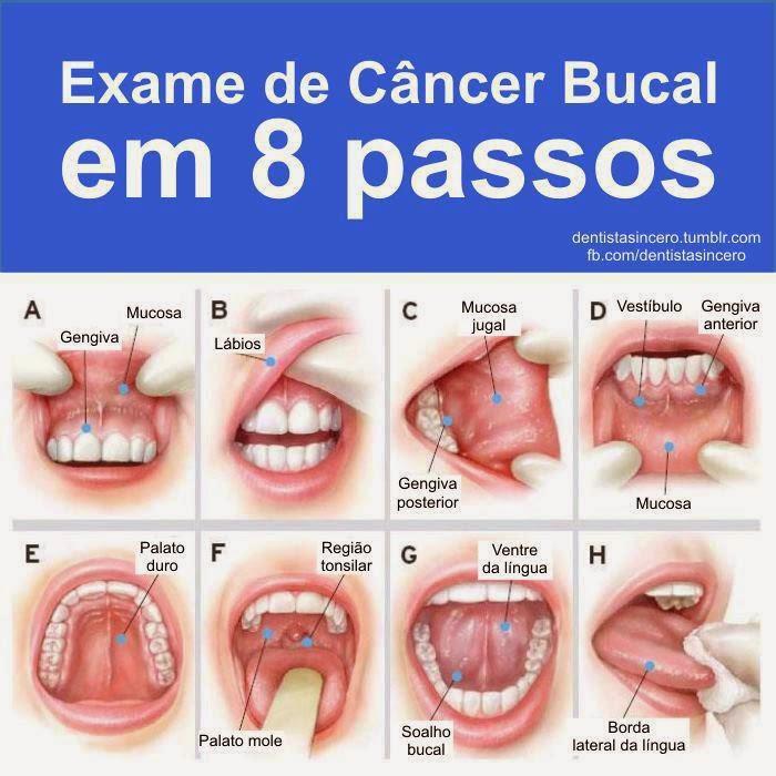 Cancer De La Boca Fotos   el virus del papiloma humano y el c 225 ncer de la boca t 35, imprensa ...