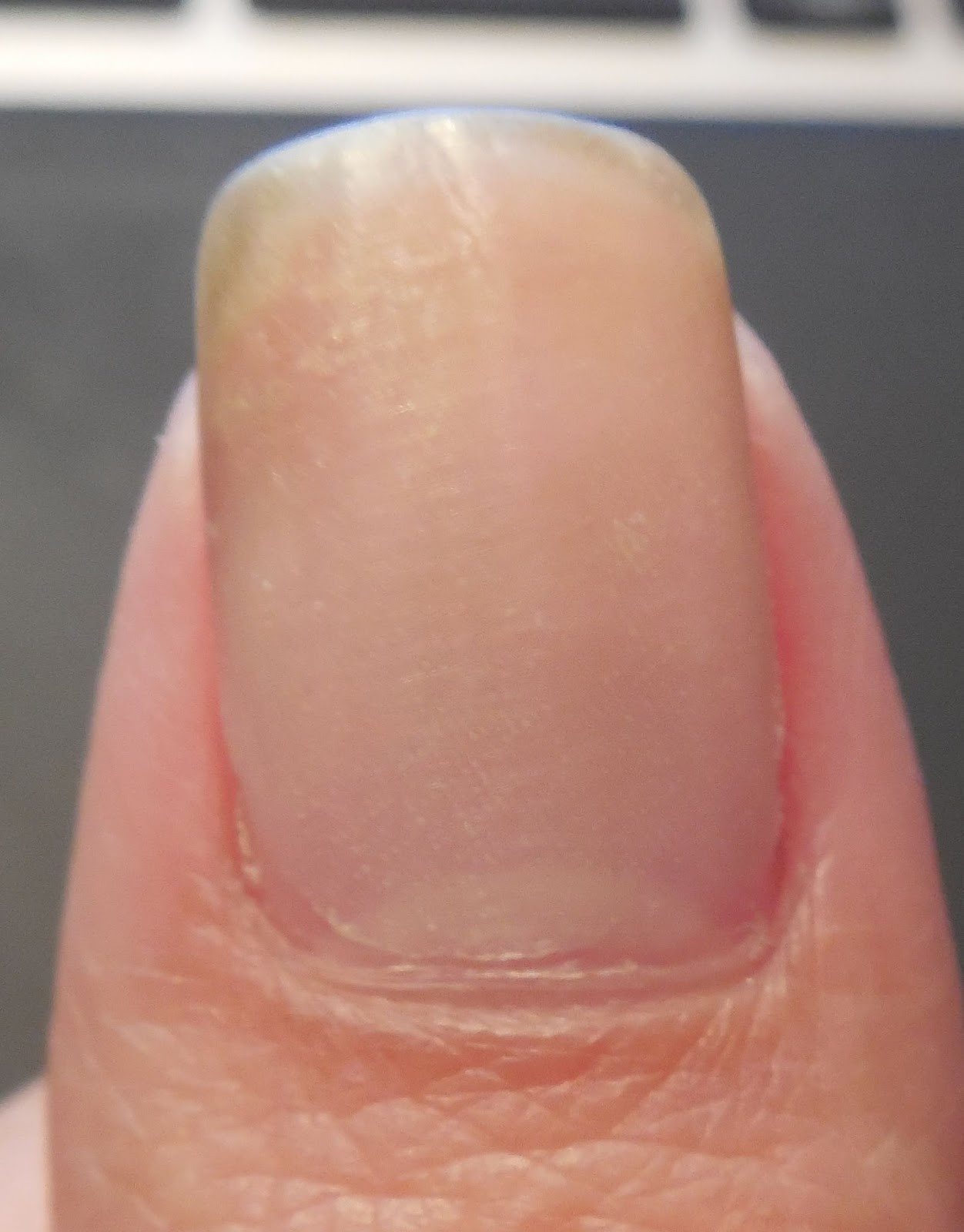 How to fix a cracked nail with crazy glue