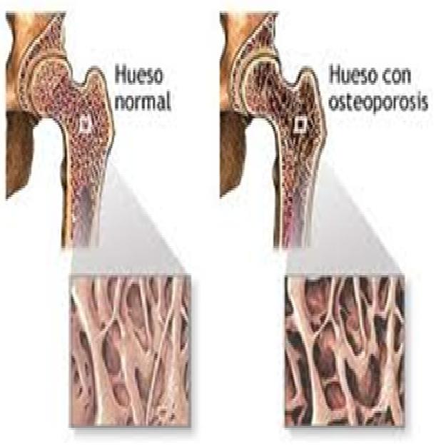 El medio al dolor en la espalda al embarazo