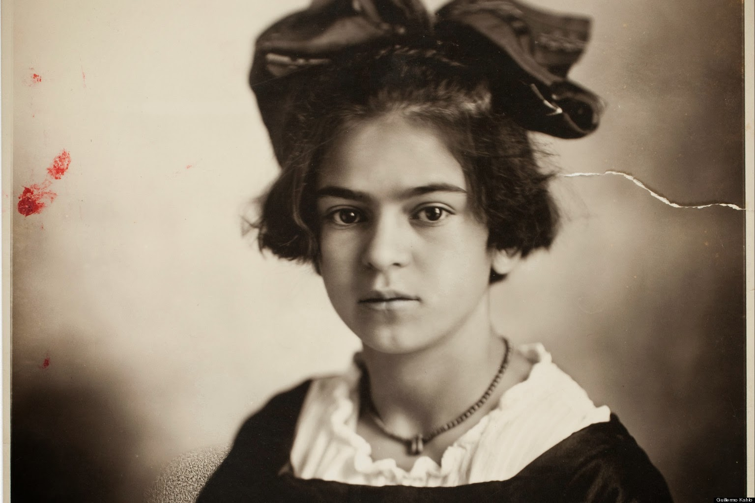 frida kahlo Frida kahlo, who originally intended to study for a career in medicine, was prone to illness from her earliest childhood at the age of six she contracted a viral infection, which malformed her right leg as a teenager she was involved in a bus accident, receiving multiple fractures to her spine and pelvis.