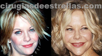 meg ryan antes y despues