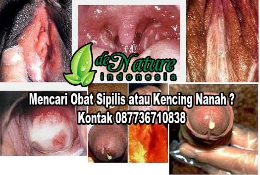 Obat Gonore Herbal Alternatif
