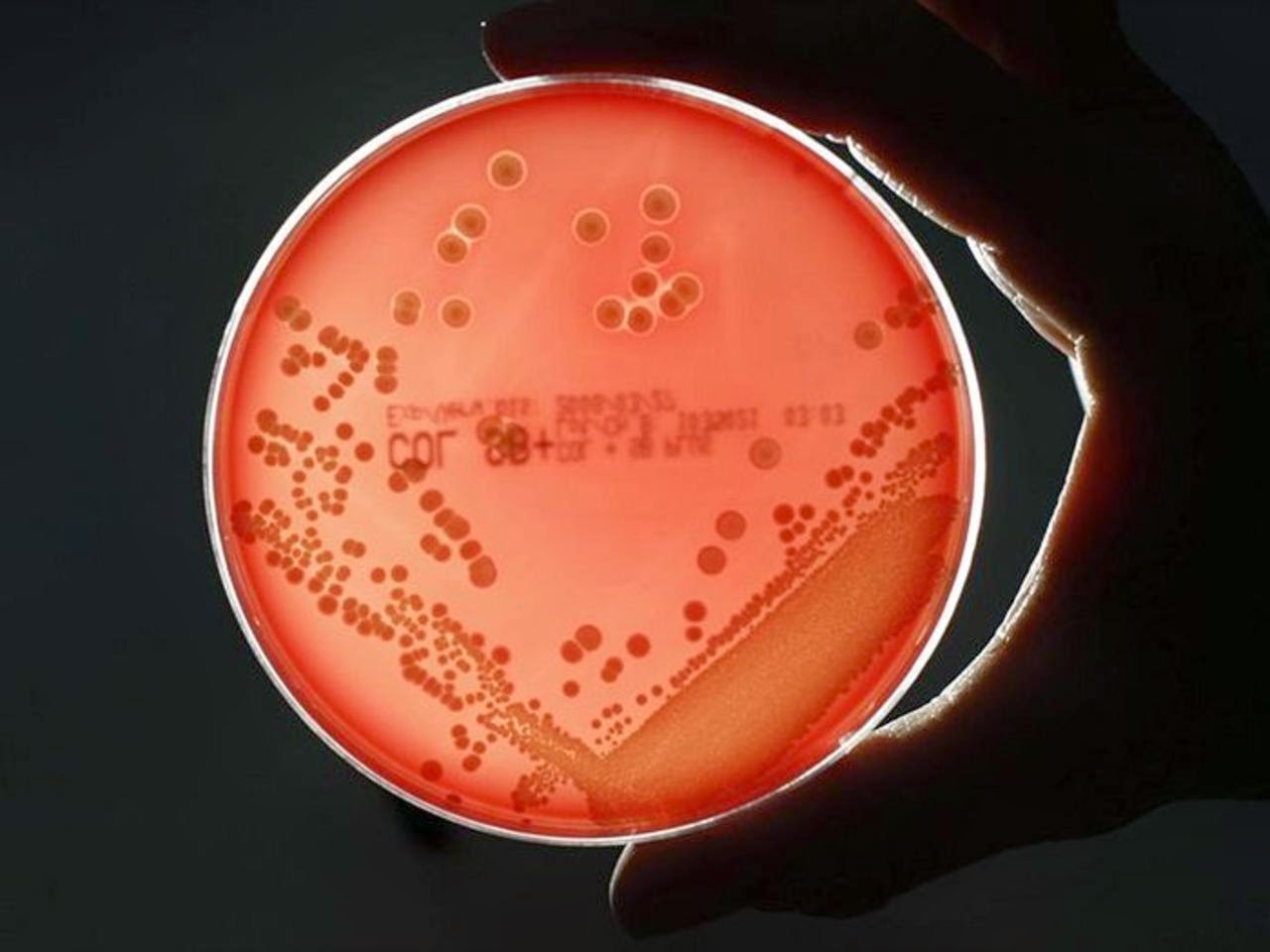 New Software Predict Superbugs' Resistance To New Drugs