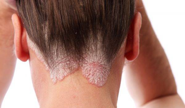 Psoriasis Scalp Treatment - Natural ways and Home remedies