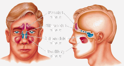 Natural Ways to Cure Sinusitis