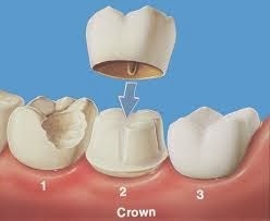http://www.dentistinchennai.com/dental-crowns.php