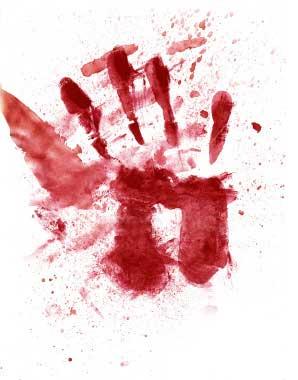 Resultado de imagem para foto de  mão com sangue