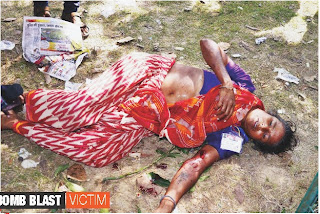Bomb Blast Victim at Patna in Modi Sabha