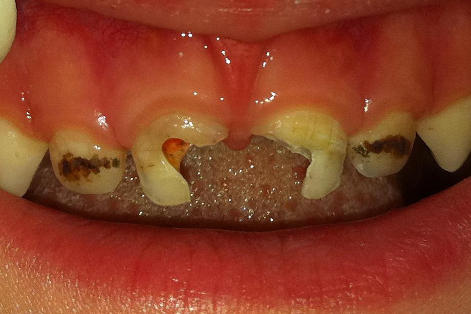 Удаление нервами молочных зубов