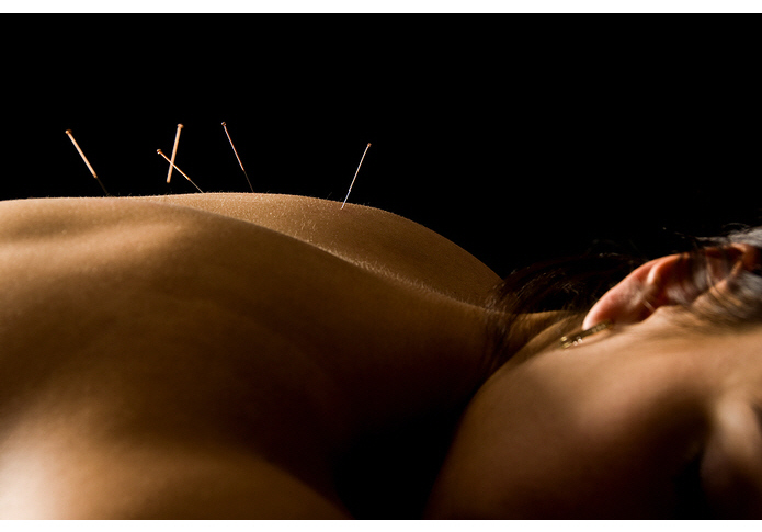 When To Avoid Dry Needling