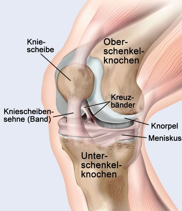 Knieprothese/ Knie-TP (Totalprothese)/ Knieendoprothese/ Kniegelenkprothese/ künstliches Kniegelenk